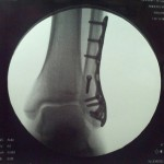 ankle-screws_09_16_11